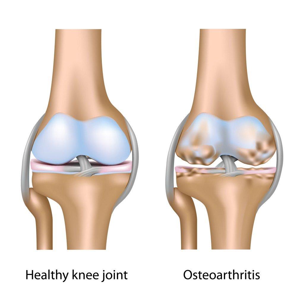 komplikasi osteoartritis