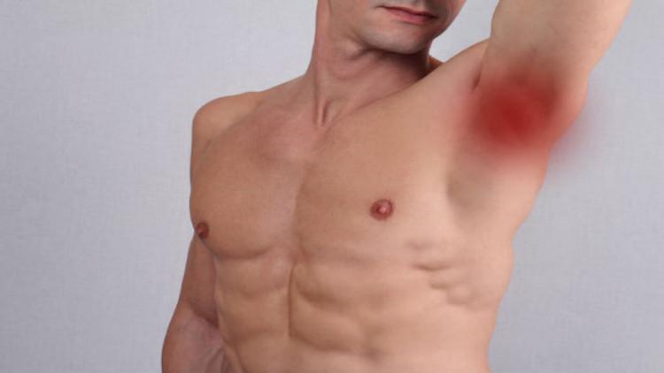 penyebab bisul di ketiak kiri