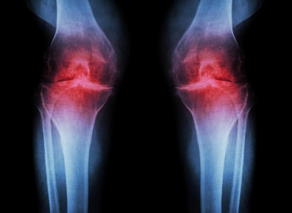 penyebab osteoarthritis