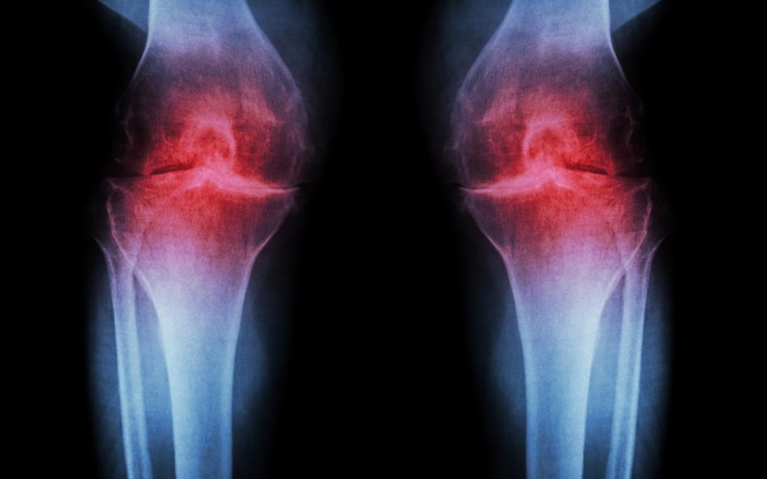 Penyebab dan juga Faktor Risiko dari Osteoarthritis