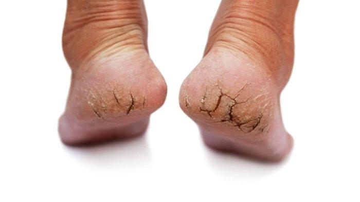penyebab kaki pecah pecah