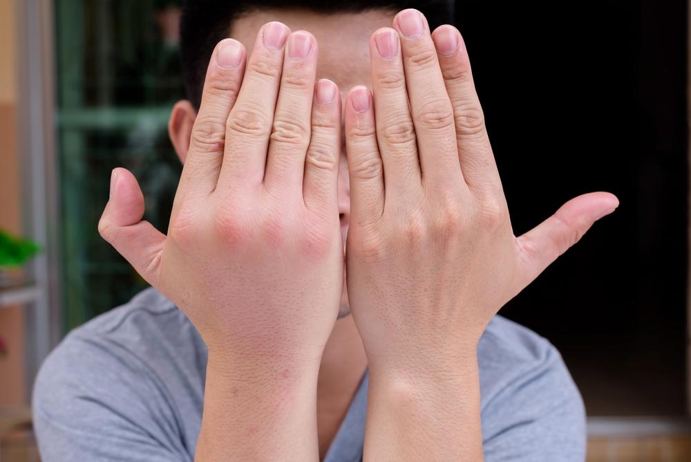 Telapak Tangan Bengkak Tanpa Sebab? Berikut Penyebabnya
