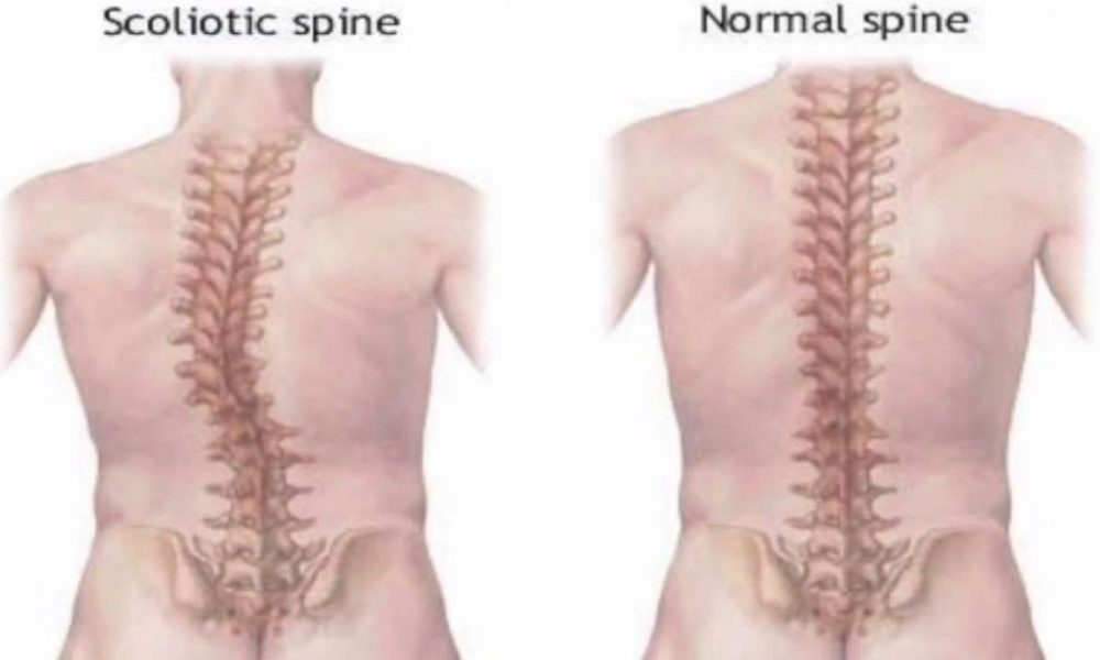 Berbagai Jenis Kelainan/Penyakit Pada Tulang Belakang
