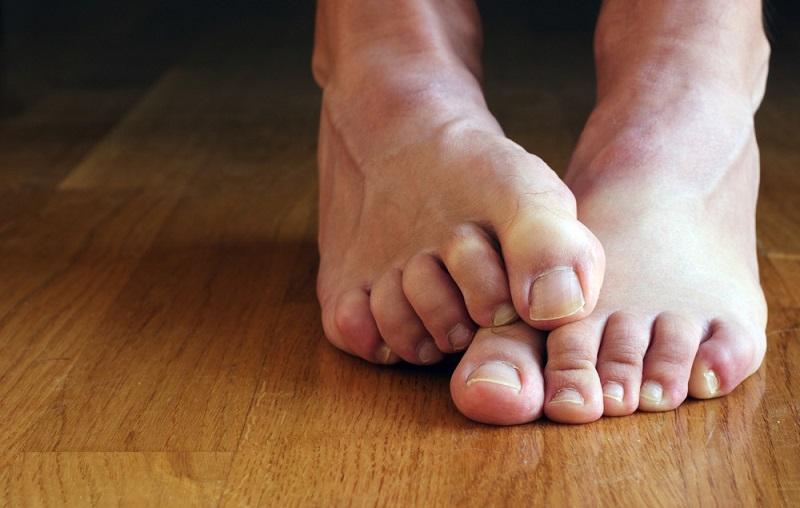 cara mengatasi jempol kaki bengkak