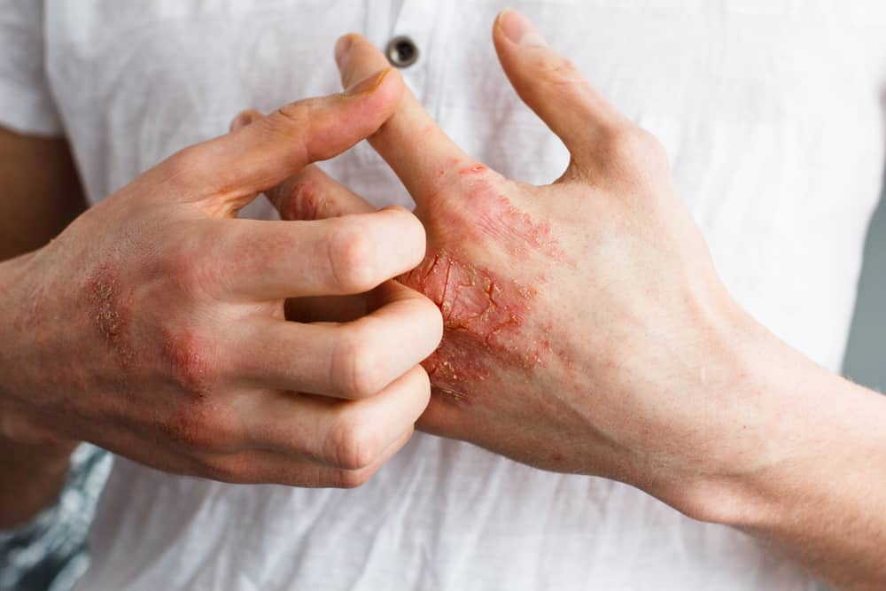 penyebab penyakit autoimun