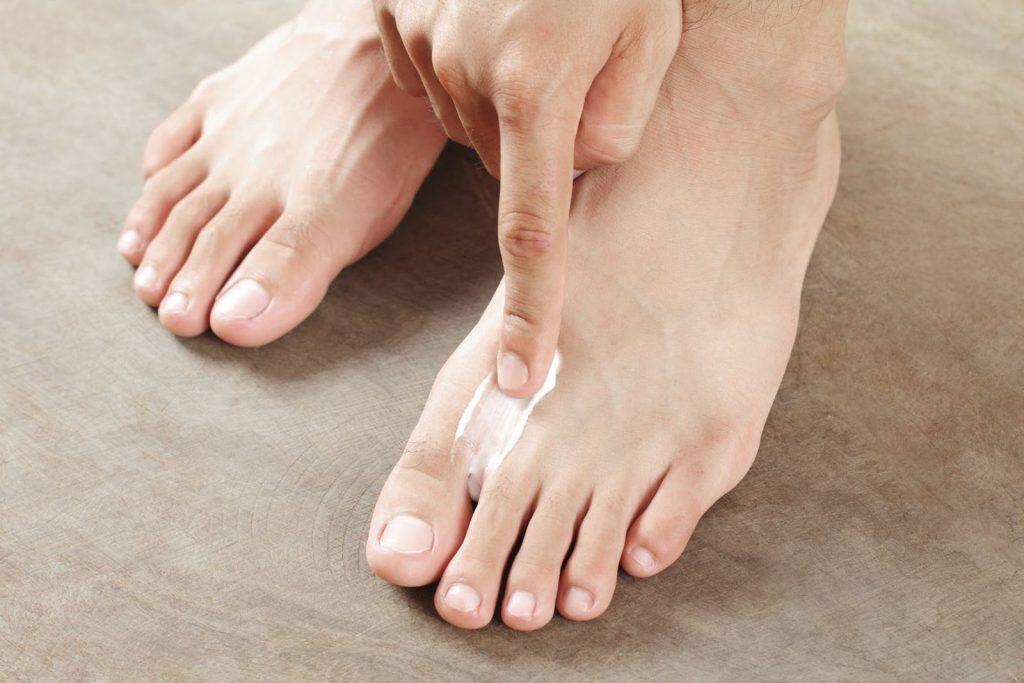 cara menghilangkan kutu air di telapak kaki