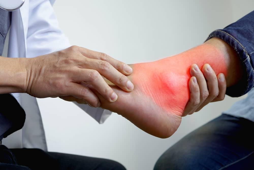 ciri kolesterol tinggi pada kaki