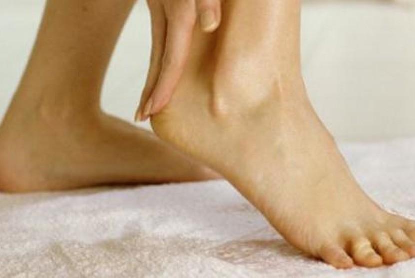bentol di kaki