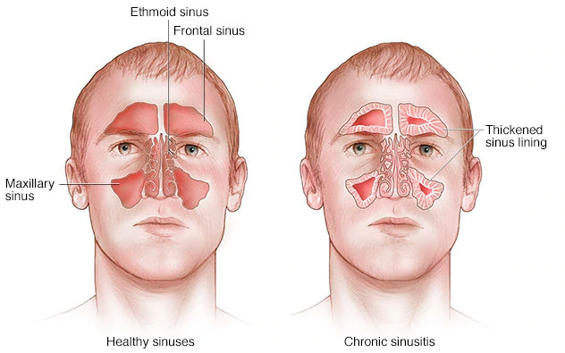 bahaya sinusitis