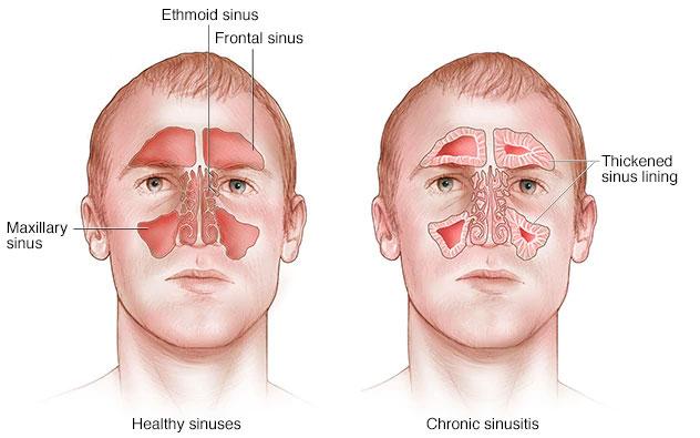 bahaya sinusitis