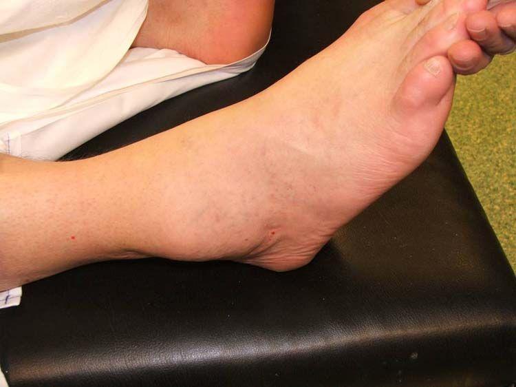 kista ganglion di kaki