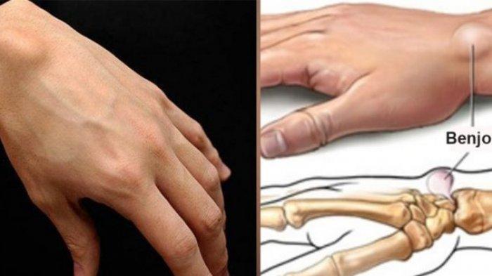 cara alami menghilangkam benjolan di tangan
